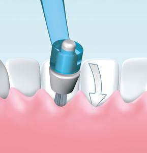 I-Prox P - Zahnfleischtaschen