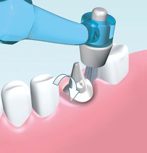 I-Prox P - Implantate
