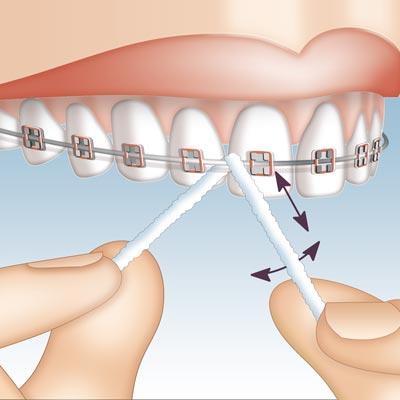 Mirafloss Implant CHX Anwendung 2