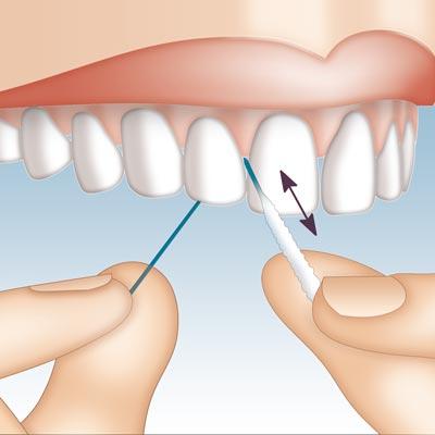 Mirafloss Implant CHX Anwendung 1